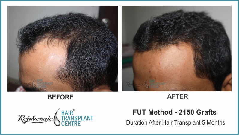 2150 Grafts FUT Hair Transplant result After 5 Months