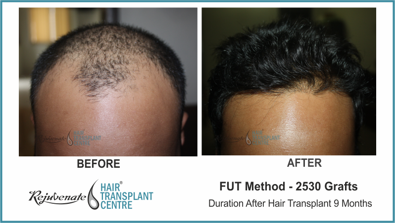 2530 Grafts FUT Hair Transplant result After 9 Months