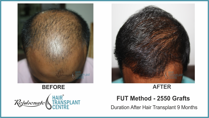 2550 Grafts FUT Hair Transplant result After 9 Months