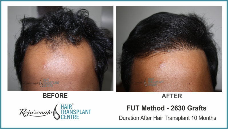2630 Grafts FUT Hair Transplant result After 10 Months