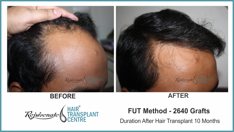 2640 Grafts FUT Hair Transplant result After 10 Months