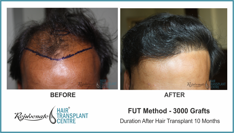 3000 Grafts FUT Hair Transplant result After 10 Months