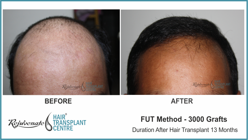 3000 Grafts FUT Hair Transplant result After 13 Months