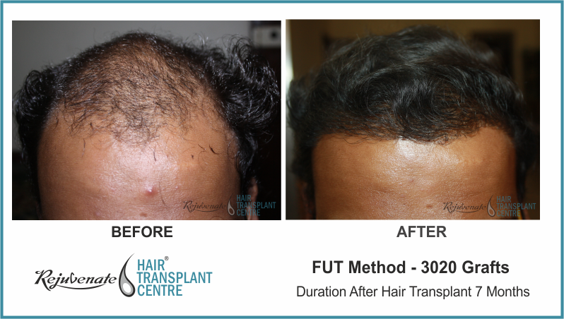 3020 Grafts FUT Hair Transplant result After 7 Months