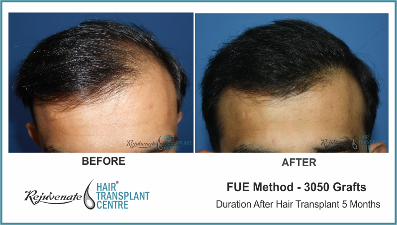 3050 Grafts FUE Hair Transplant result After 5 Months