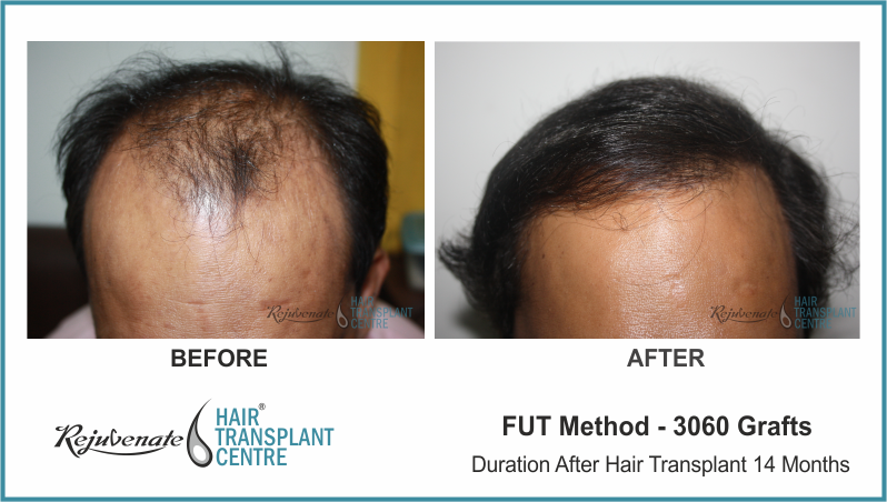 3060 Grafts FUT Hair Transplant result After 14 Months