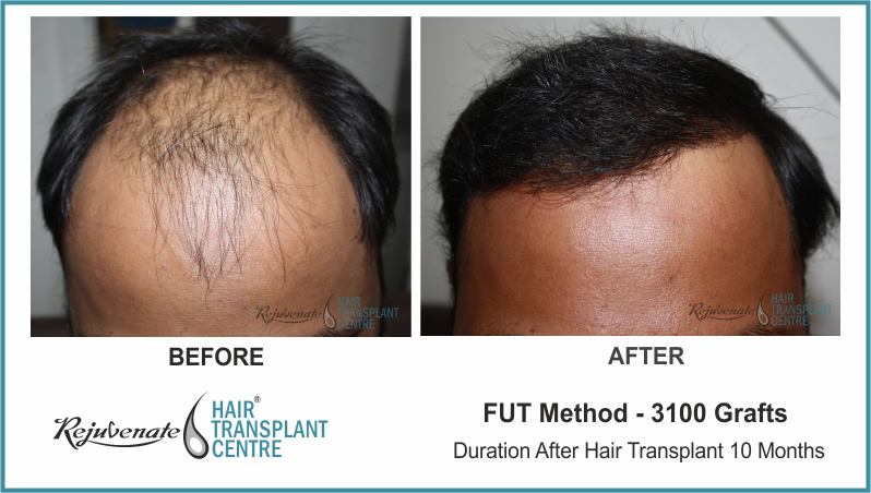 3100 Grafts FUT Hair Transplant result After 10 Months