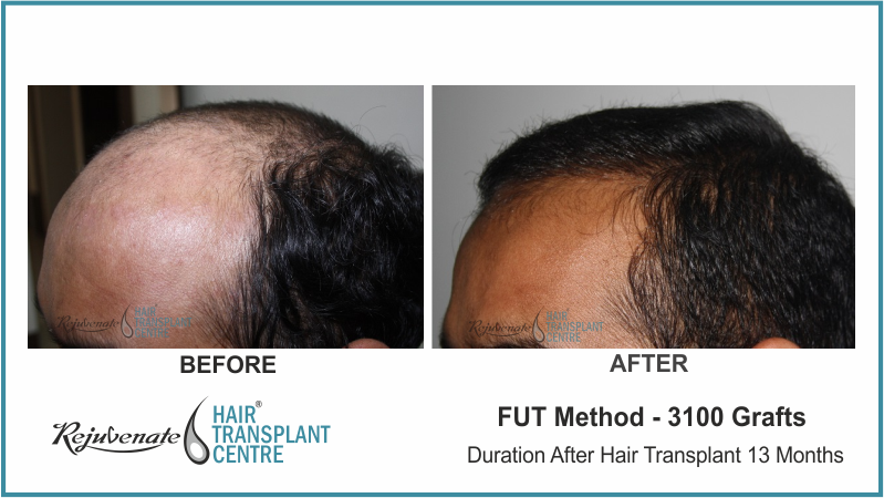 3100 Grafts FUT Hair Transplant result After 13 Months
