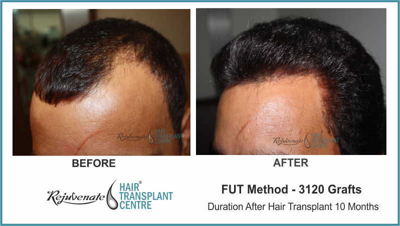 3120 Grafts FUT Hair Transplant result After 10 Months