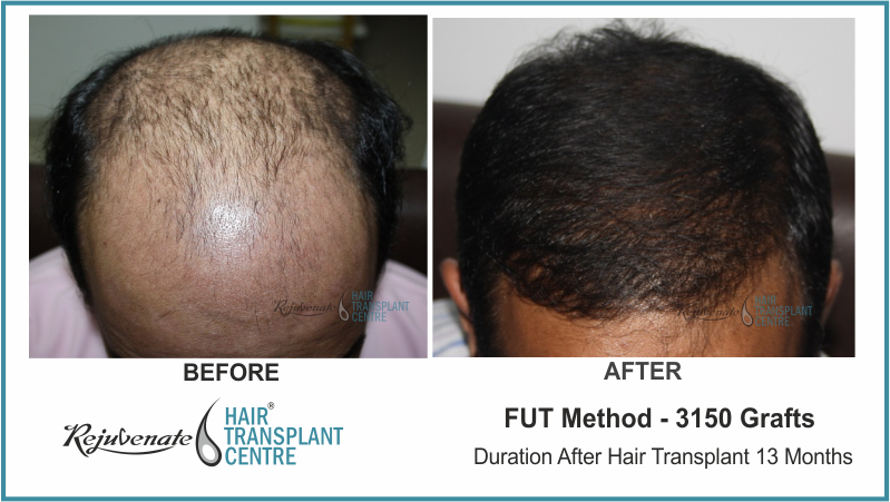 3150 Grafts FUT Hair Transplant result After 13 Months