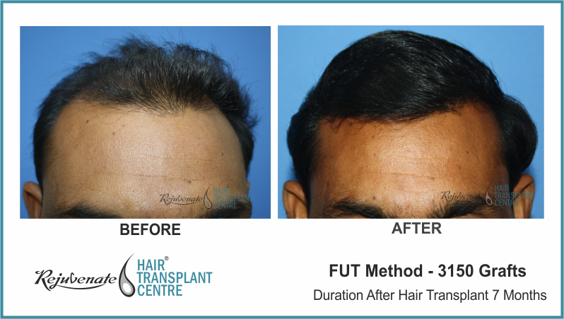 3150 Grafts FUT Hair Transplant result After 7 Months