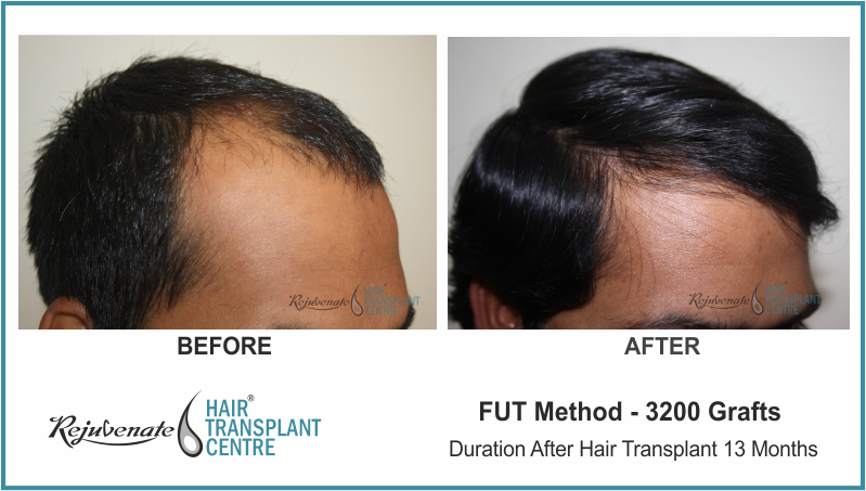 3200 Grafts FUT Hair Transplant result After 13 Months