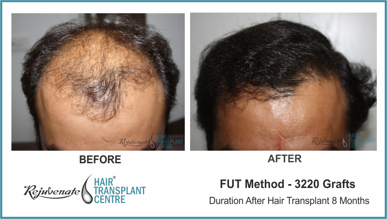 3220 Grafts FUT Hair Transplant result After 8 Months