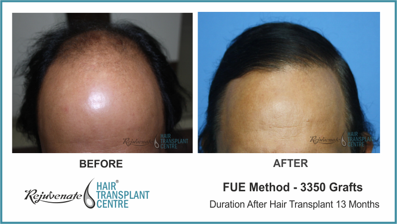 3350 Grafts FUE Hair Transplant result After 13 Months