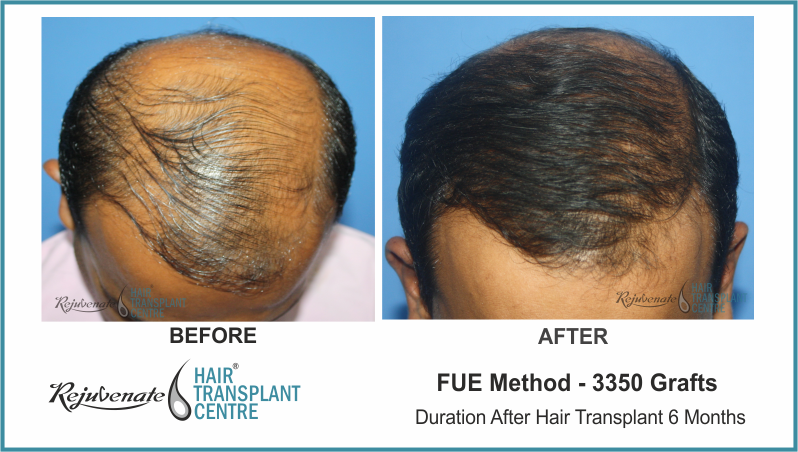 3350 Grafts FUE Hair Transplant result After 6 Months (2)