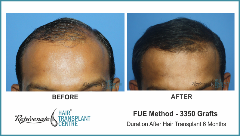 3350 Grafts FUE Hair Transplant result After 6 Months