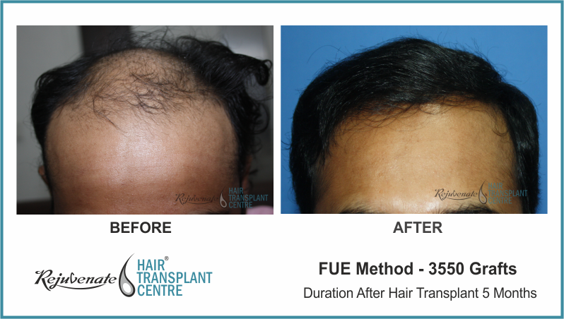 3550 Grafts FUE Hair Transplant result After 5 Months