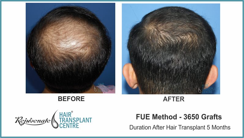 3650 Grafts FUE Hair Transplant result After 5 Months