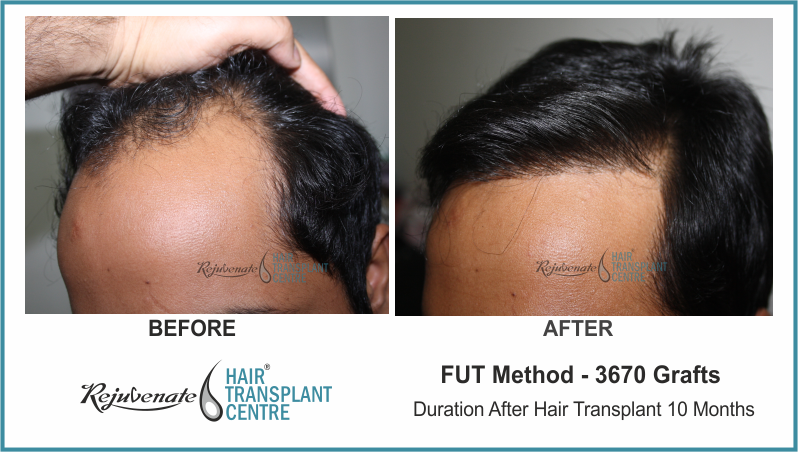 3670 Grafts FUT Hair Transplant result After 10 Months