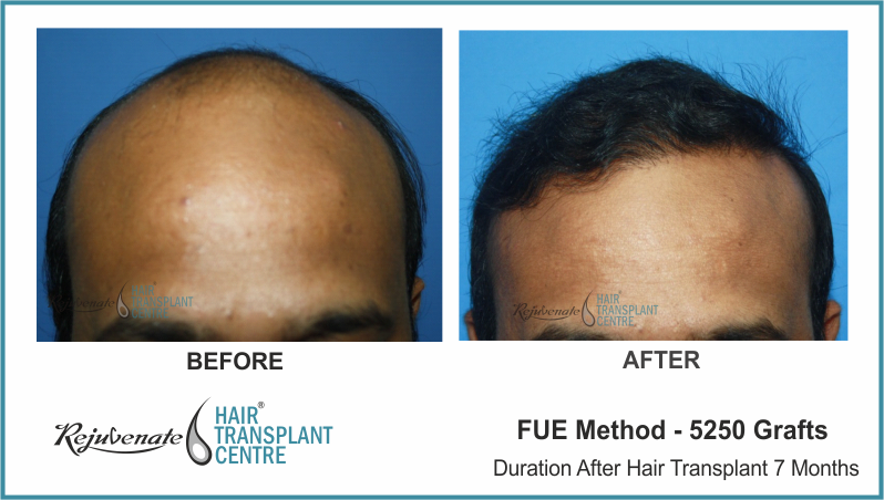 5250 Grafts FUE Hair Transplant result After 7 Months