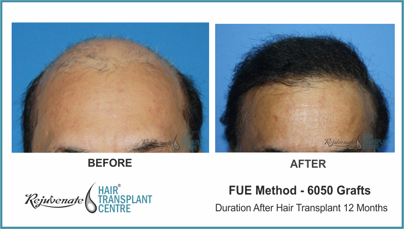6050 Grafts FUE Hair Transplant result After 12 Months