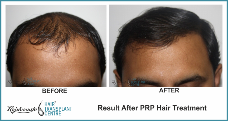 PRP Therapy Result After 4 Months 10 Days