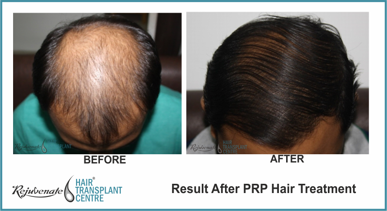 PRP Therapy Result After 4 Months 5 Days