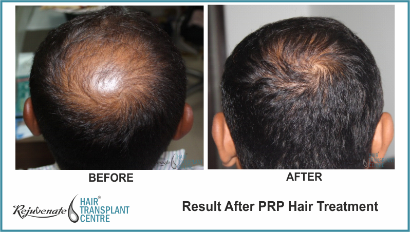 PRP Therapy Result After 4 Months 15 Days