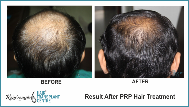 PRP Therapy Result After 4 Months 12 Days