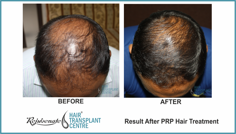 PRP Therapy Result After 4 Months 20 Days