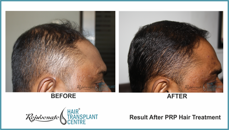 PRP Therapy Result After 4 Months 8 Days