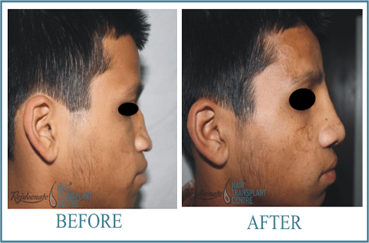 23 years Men Rhinolplasty Result