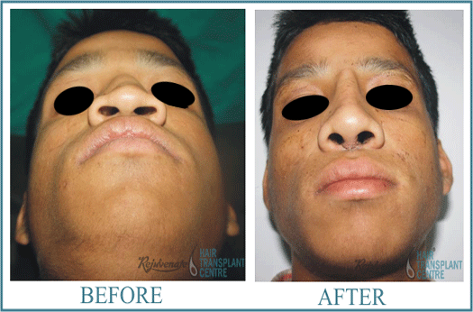 25 years Men Rhinolplasty Result