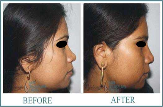 28 years Women Rhinolplasty Result