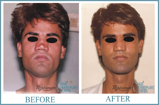 30 years Men Rhinolplasty Result