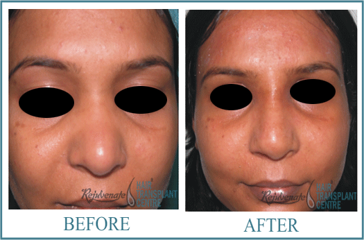 31 years Women Rhinolplasty Result