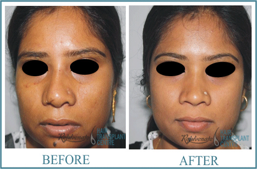 32 years Women Rhinolplasty Result