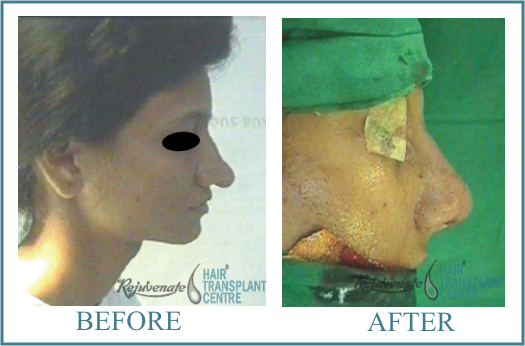 35 years Women Rhinolplasty Result