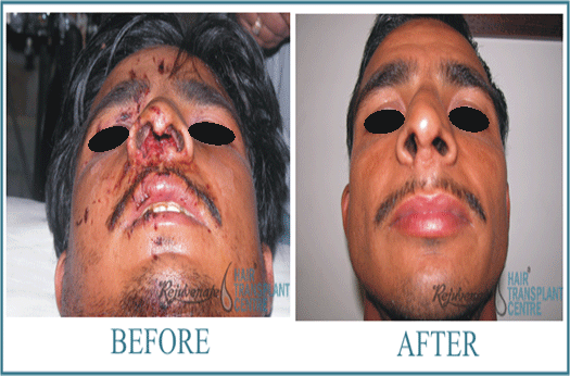 40 years Men Rhinolplasty Result