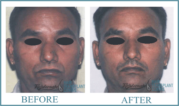 45 years Men Rhinolplasty Result