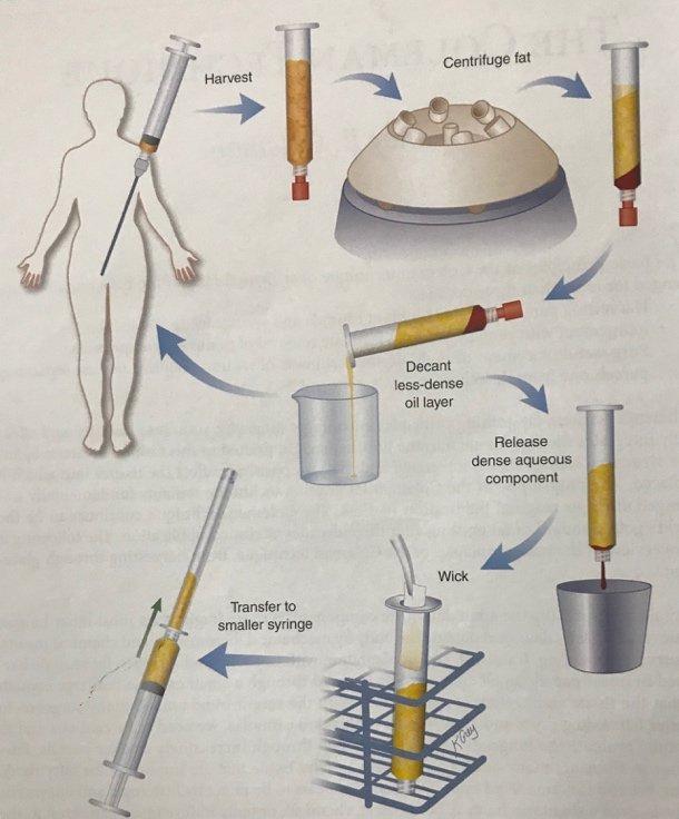 Autologous Fat Transfer Procedure