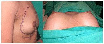 Breast Augmentation Result