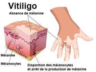 Cause of Vitiligo