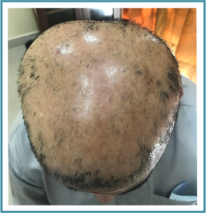 Cicatricial alopecia Cause