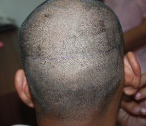 Complete Head Shaving of After FUE