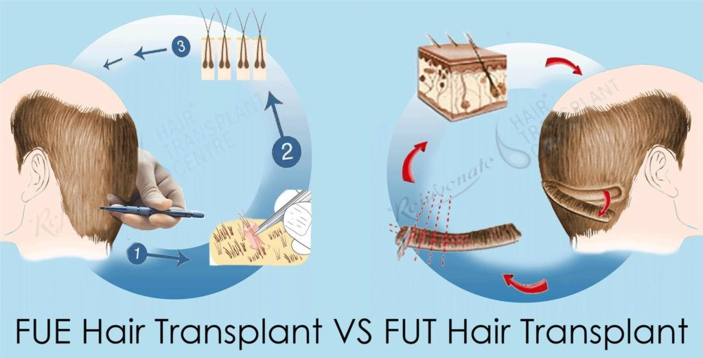 Difference Between FUE and FUT Hair Transplant