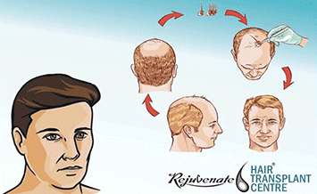 Direct Hair Implantation Technique