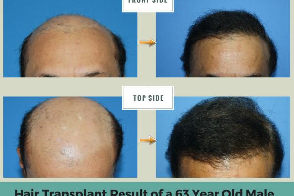 hair transplant work or not