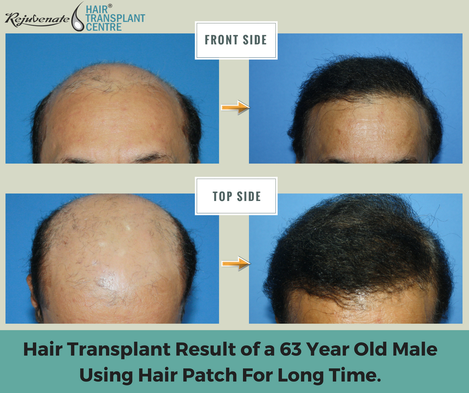 hair transplant work or not