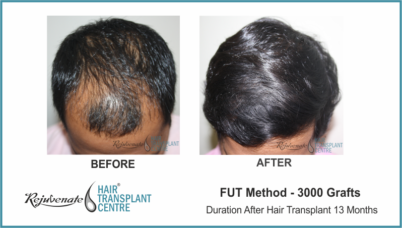FUT Hair Transplant Result